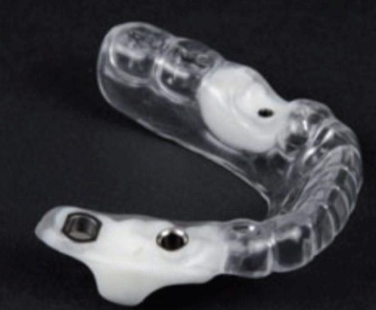 Últimas novedades sobre implantes dentales