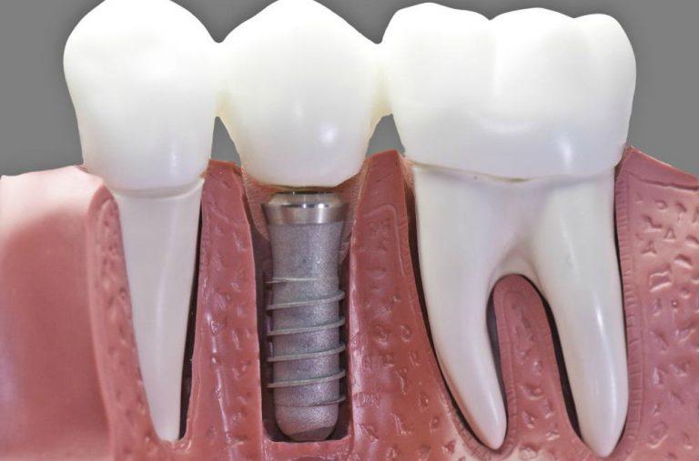 Una clínica con gran experiencia en implantes dentales